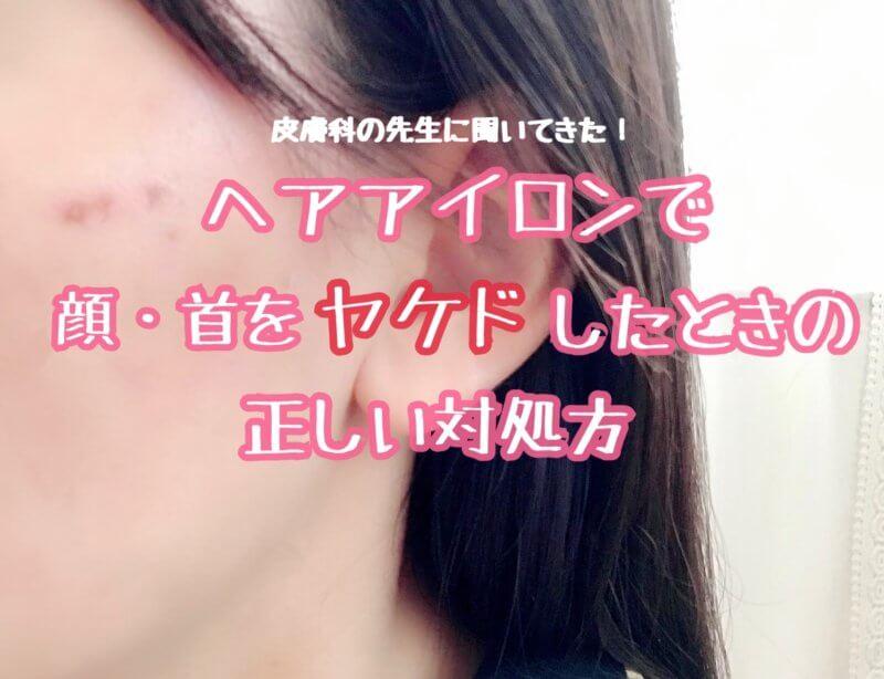 顔・首のやけどを治す方法